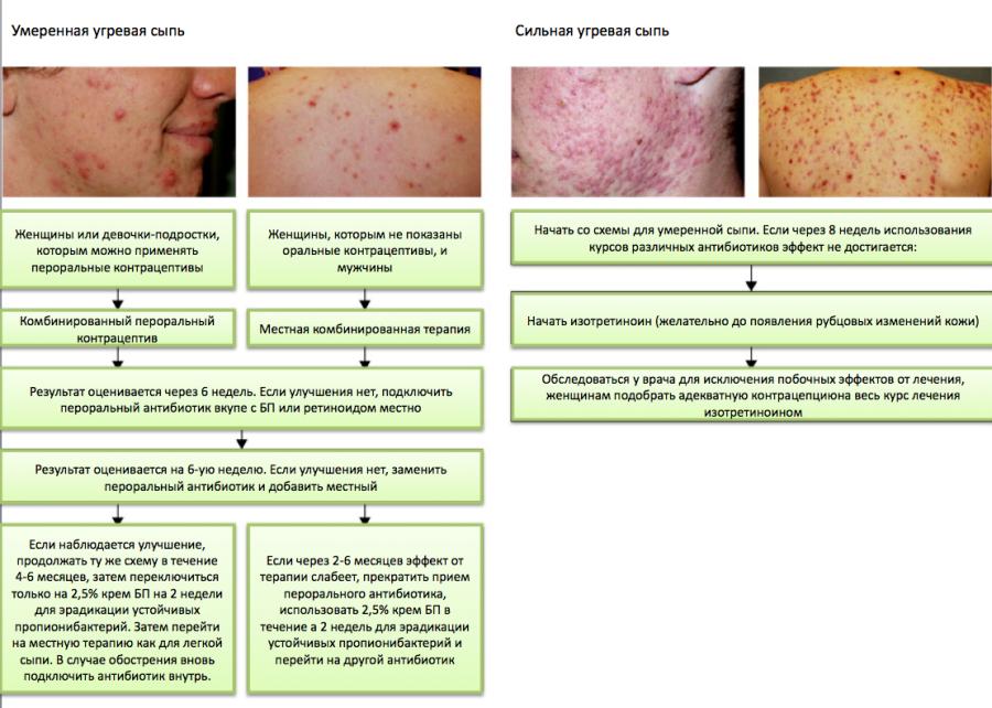 Аргановое масло для проблемной кожи лица