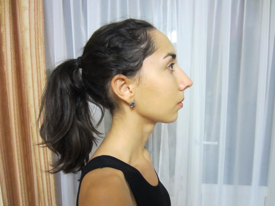 лицо-профиль