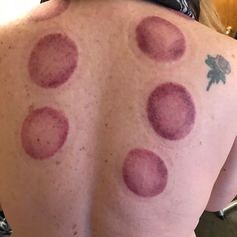 cupping circles