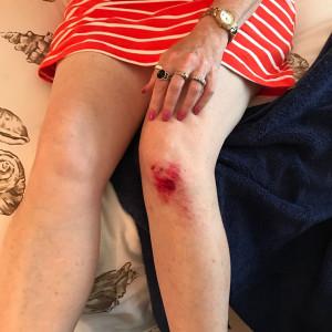 knee-hurt.jpg