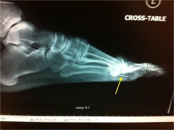 foot x-ray 2
