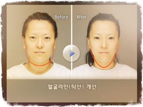 Как убрать мешки над глазами без операции.видео
