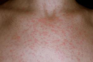 Чем лечиться если аллергия на анальгетики