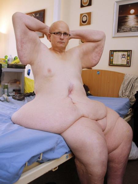 мужчина сильно похудел результат