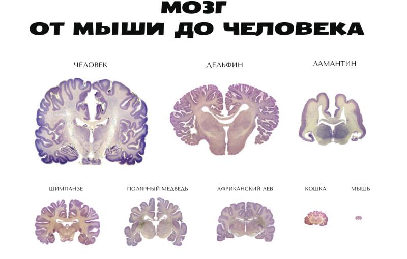 Из чего состоит головной мозг человека