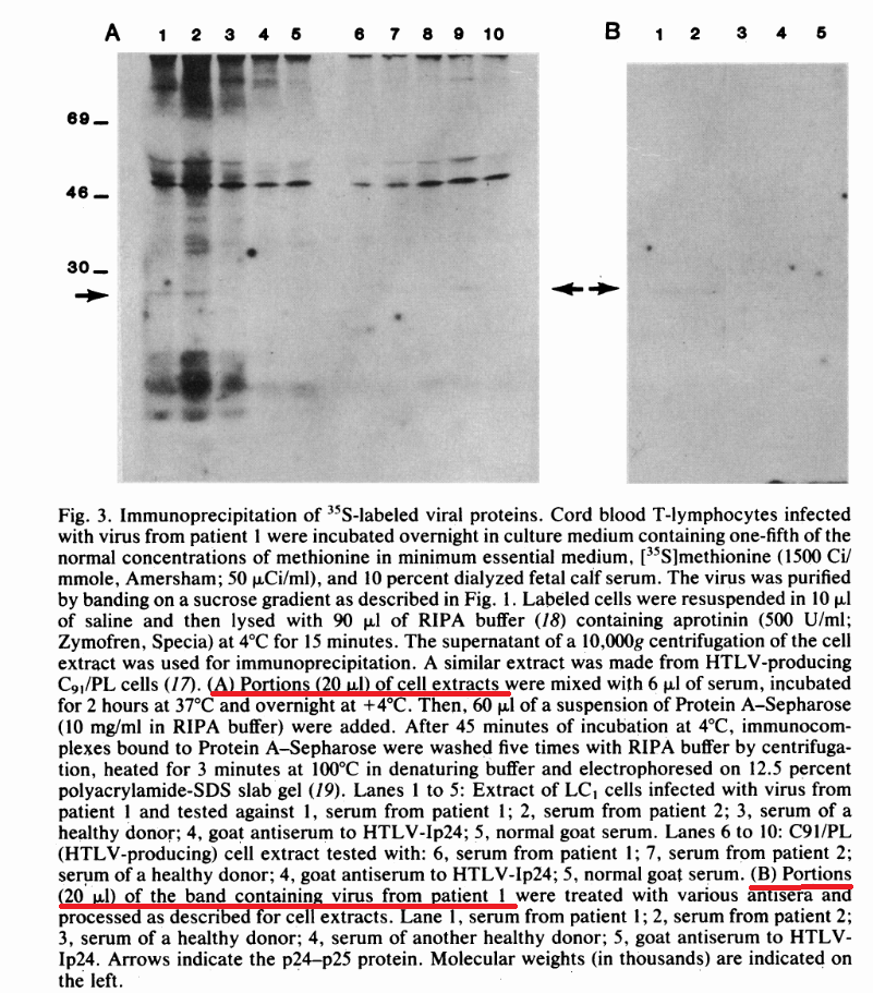 Из статьи: Isolation of a T-Lymphotropic Retrovirus from a Patient at Risk for Acquired Immune Deficiency Syndrome (AIDS)