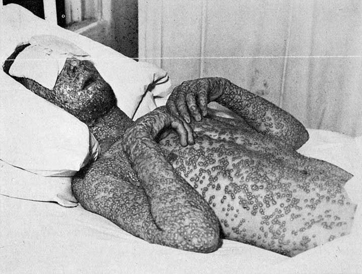 smallpox-victim