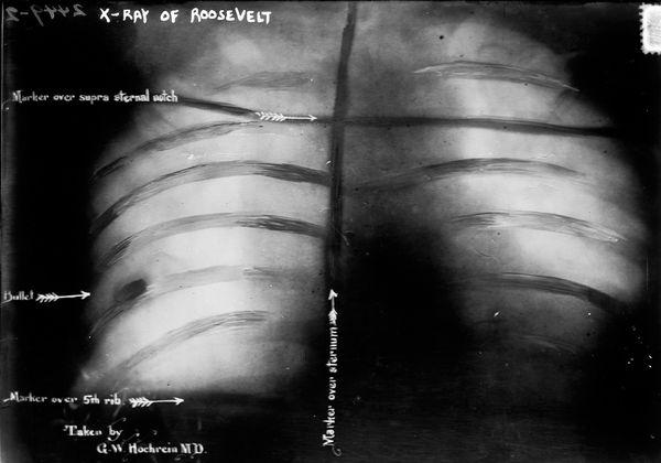 x-ray-history-roosevelt-ribs_28420_600x450