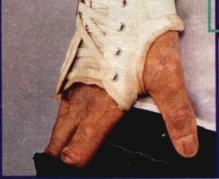 Tags: Майкл Джексон , витилиго