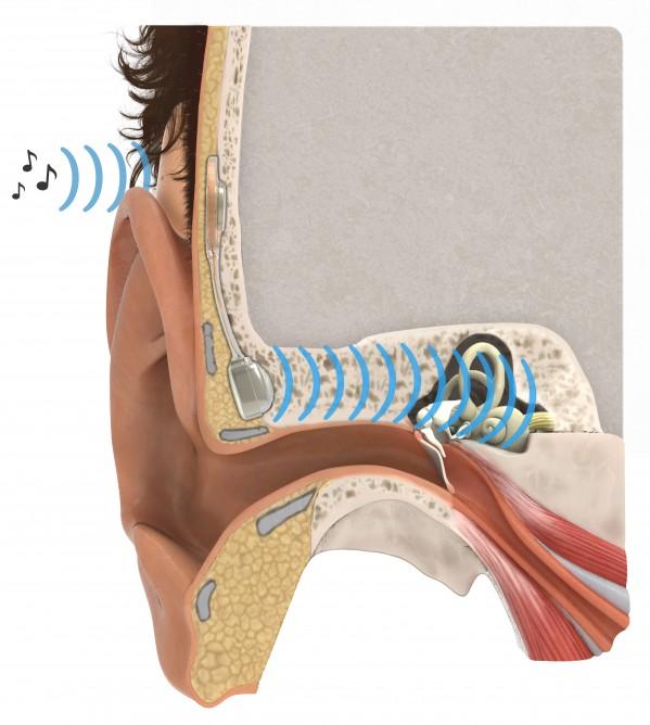 boneconductionimplant-2