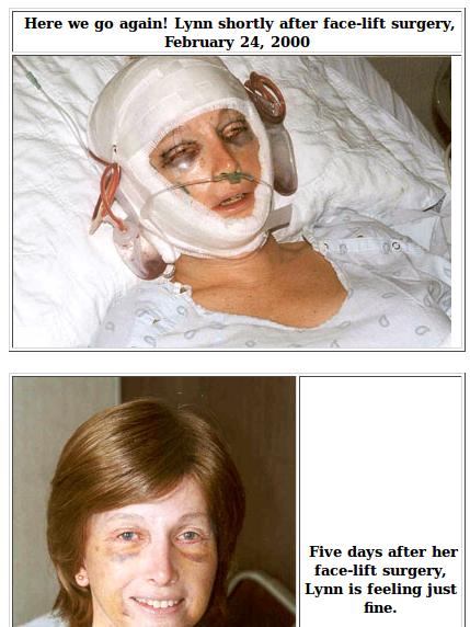 Пластическая операция 2000 года