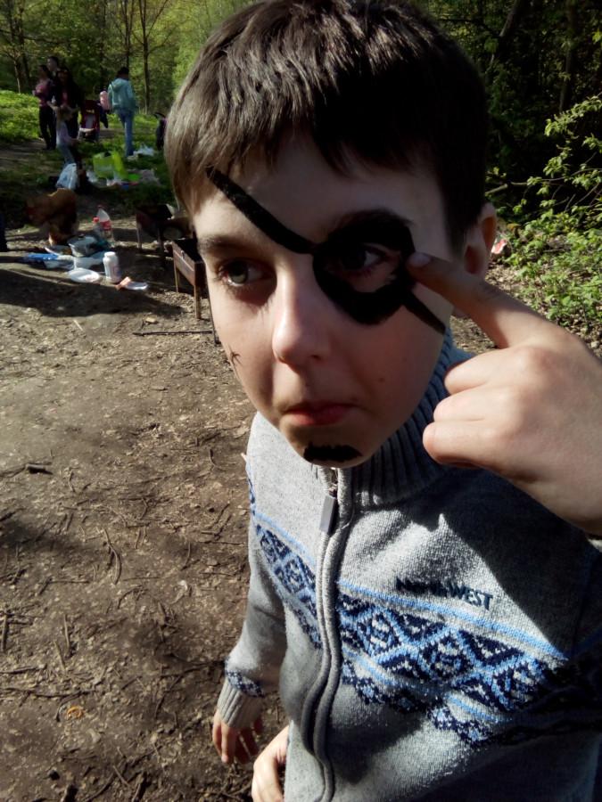 9 - ребёнку подбили глаз.jpg