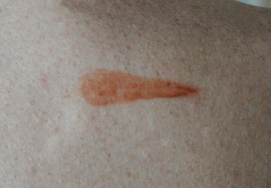 Cloud Atlas Comet Birthmark