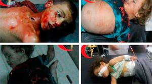 Россия бомбит оппозицию, а не ИГ, гибнут дети