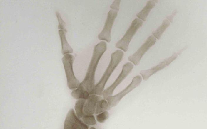X-ray of the Hand and Wrist of Nicholas II, Emperor of Russia, 1898 - Harvard Medical Library / Рентгеновский снимок кисти и запястья Николая II, императора России, 1898 г. - Гарвардская медицинская библиотека