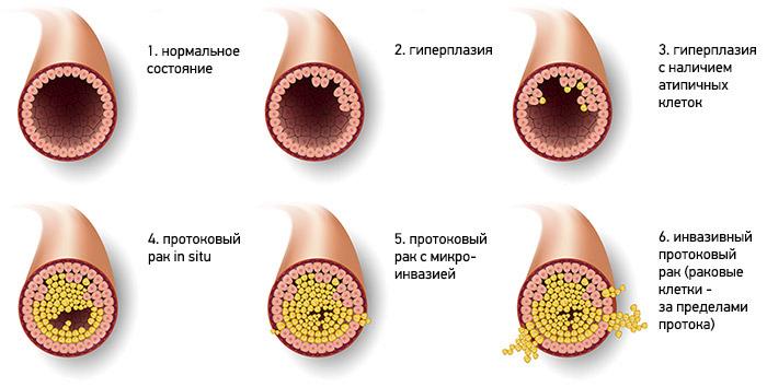 Протоковый рак молочной железы / ©Пресс-служба «Европейской клиники»