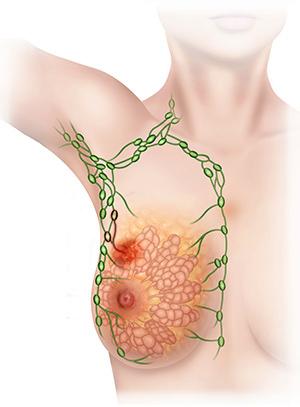 Сеть лимфоузлов, по которым распространяются метастазы / ©Пресс-служба «Европейской клиники»