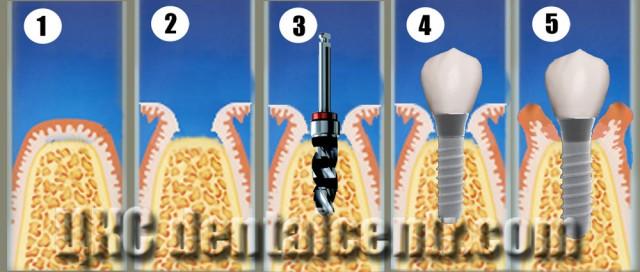одноэтапная имплантация, порядок проведения (схема), Стоматологи Харьков