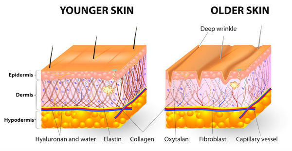 aging_skin_cross_section.jpg