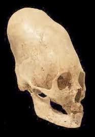 черепа21