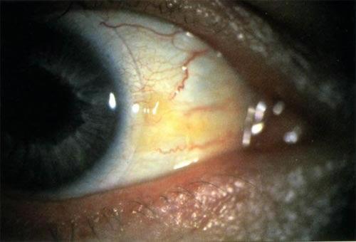 Журнал о глазах и заболеваниях