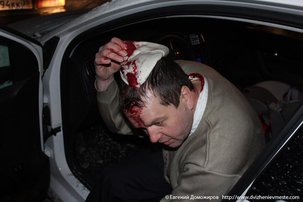 Евгений Доможиров после нападения 10-го января 2013 года