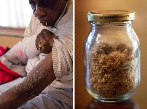Американские эксперименты с ипритом на людях и расовые поиски идеального химического бойца