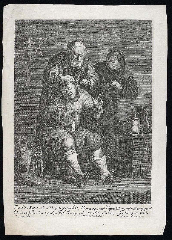 Франсуа Вервилт. Хирург, оперирующий голову мужчине (гравюра). 1658