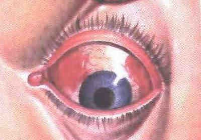 ГЛПС. Кровоизлияние под коньюнктиву.