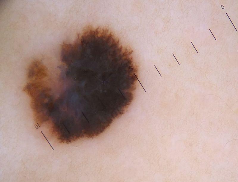 melanomamicro