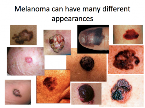 differenmelanoma