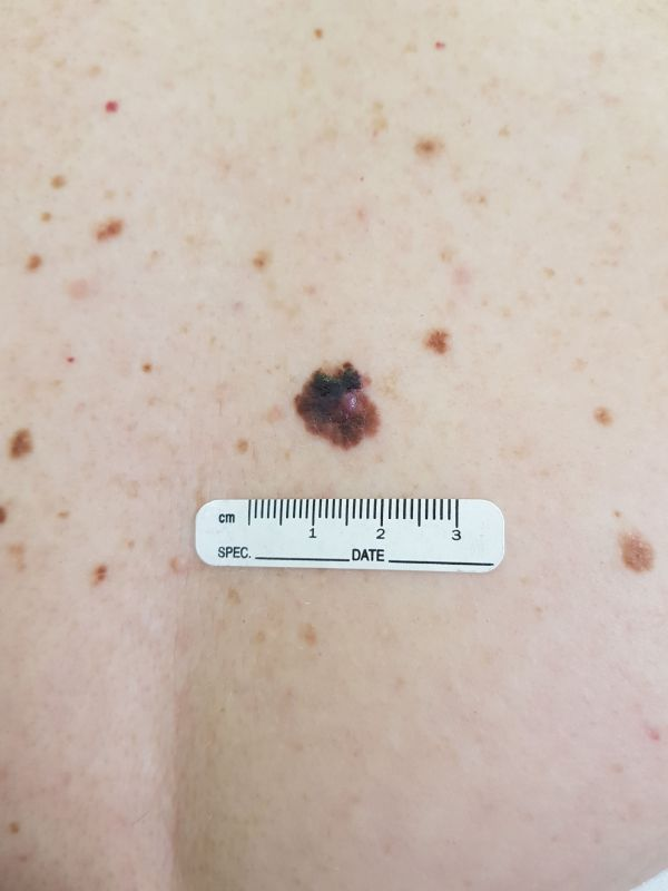 melanoma3