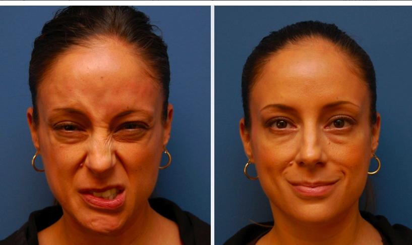 Коррекция асмметрии лица с помощью ботулотоксина
