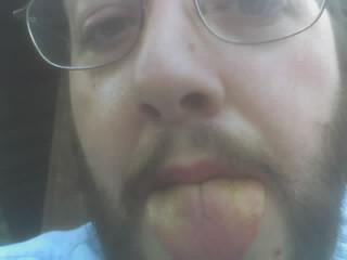 Greg and his yellow tongue