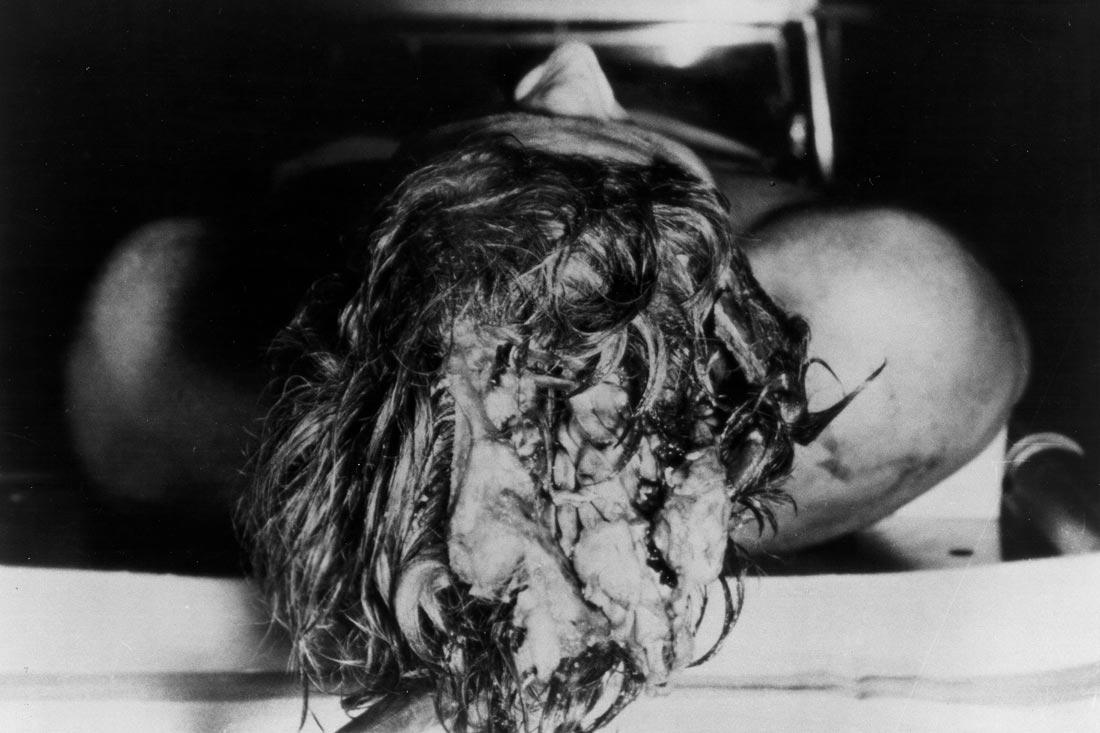 фото убитого кеннеди в морге