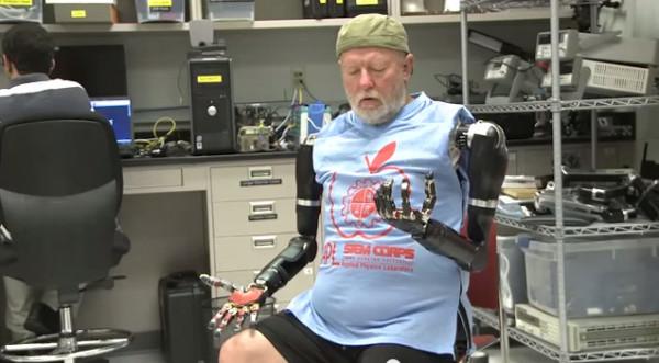 роботизированные пртезы