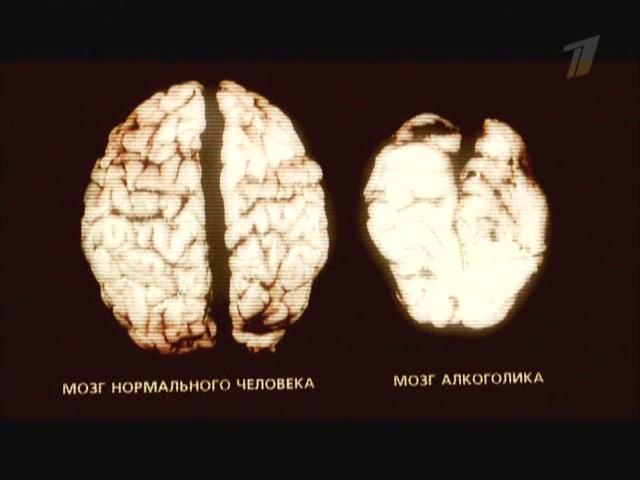 мозг пьющего