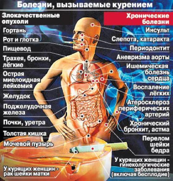 болезни связанные с курением