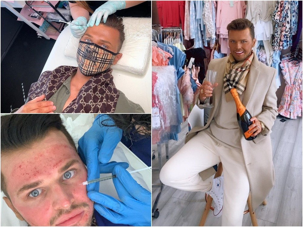 Мужчина с внешностью Кена тратит по £10 000 в год на косметические процедуры