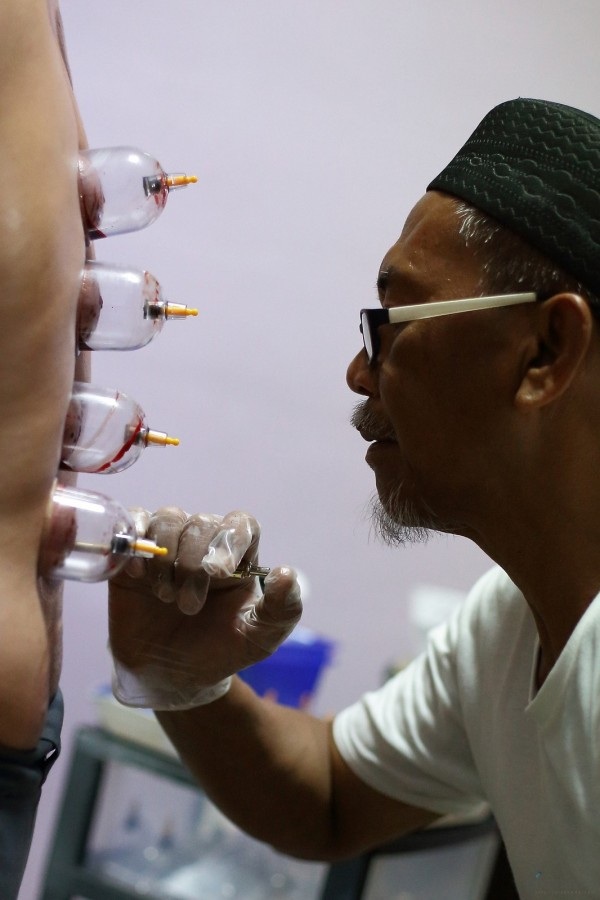 Blood-cupping_pixanews-2