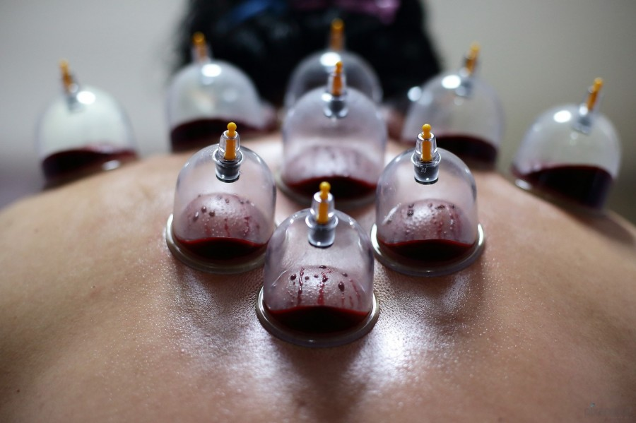 Blood-cupping_pixanews-4