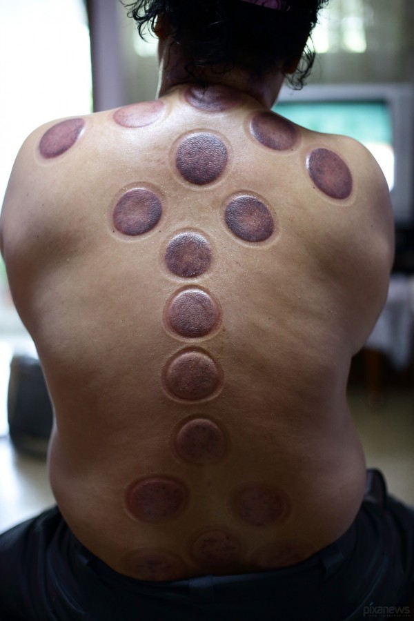 Blood-cupping_pixanews-10