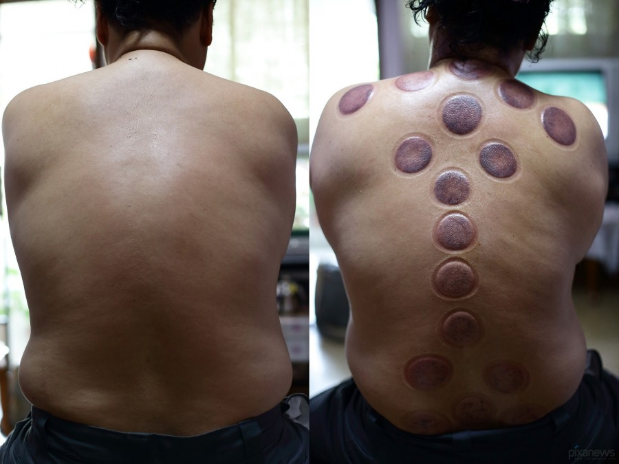 Blood-cupping_pixanews-13