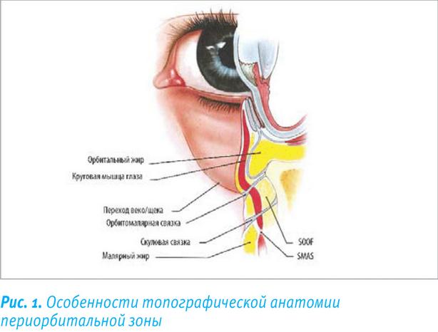 Параорбитальная гематома: фото и схема лечения