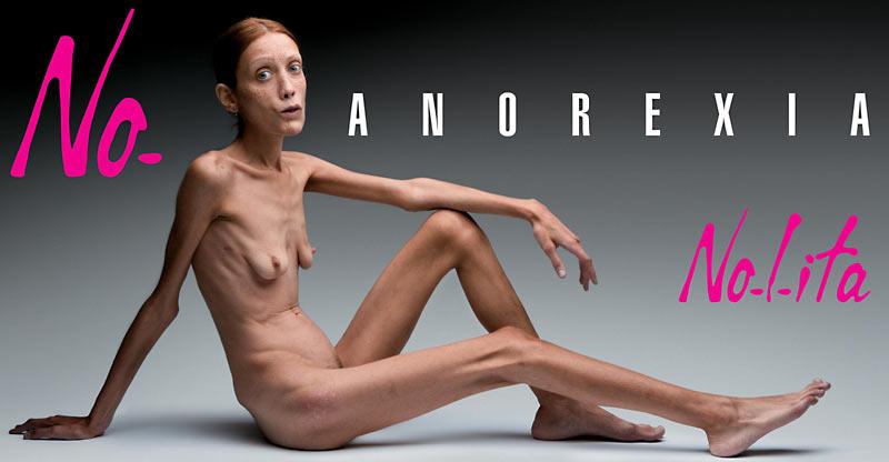 Исабель Каро, анерексия