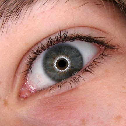 gabe-eye-2-9-13.2