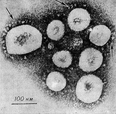 Электронограмма коронавируса, полученного из культуральной жидкости органной культуры трахеи эмбриона человека: на поверхности вирионов видны бахромчатые ворсинки — указаны стрелками (К. McIntosh, 1974).