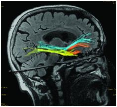 Рис.1. Трактограмма нижнего лобно-затылочного тракта (синий цвет), нижнего продольного пучка (жёлтый цвет) и крючковидного пучка (оранжевый цвет)