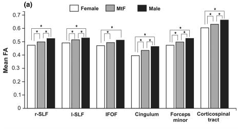 Рис.2.    r-SLF и l-SLF  –правый и левый нижний продольный пучок (fasciculus longitudinalis inferior)   IFOF –  нижний лобно-затылочный пучок (inferior fronto-occipital fasciculus)     Сingulum  –  пояс      Forceps minor – лобные (малые) щипцы      Corticospinal tract – кортико-спинальный тракт