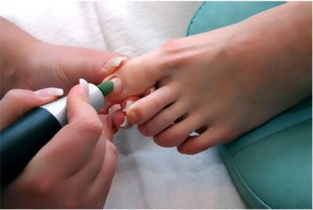 Медицинский педикюр при грибке ногтей (аппаратный)…